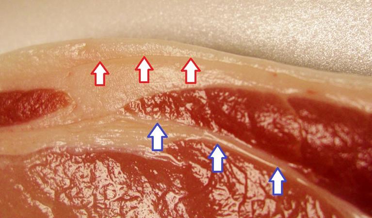 超音波画像診断装置の解析イメージ